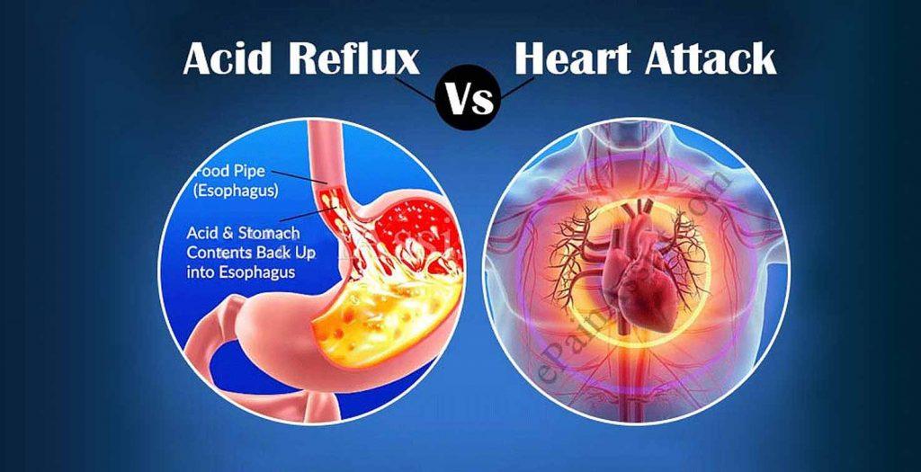 Acid-Reflux-Heart-Attack