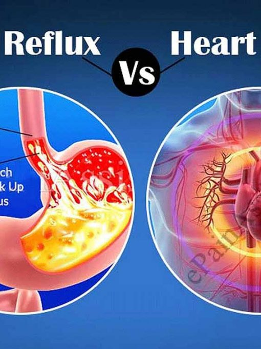 Acid-Reflux-Heart-Attack